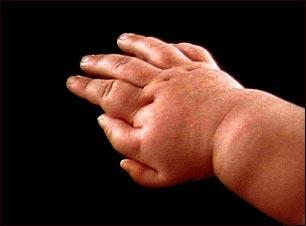 Polidactilia en la mano de un niño