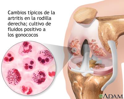 Artritis gonocócica