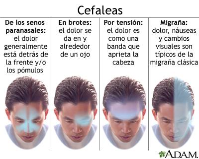 El complejo de los ejercicios a la osteocondrosis del cuello