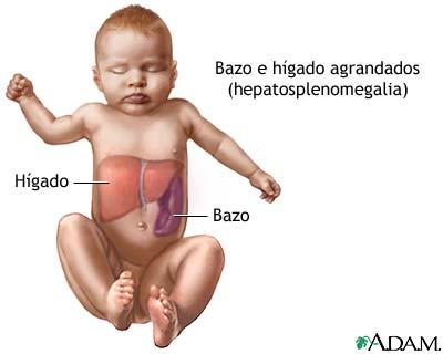 Hepatoesplenomegalia