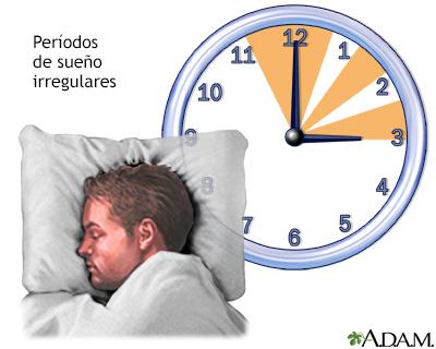 Sueño irregular