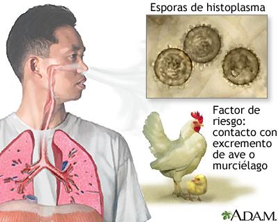 Histoplasmosis aguda