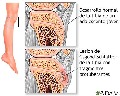 Si es posible ocuparse del boxeo a la hernia sheynogo del departamento de la columna vertebral