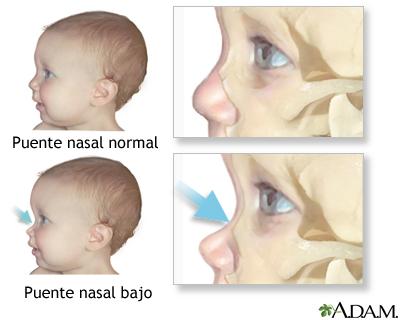 Puente nasal bajo