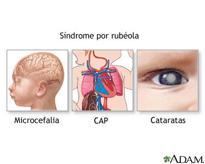 Síndrome de la rubéola