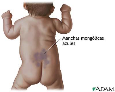 Manchas mongólicas