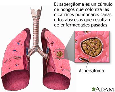 Aspergiloma medlineplus enciclopedia m dica illustraci n - El moho es un hongo ...