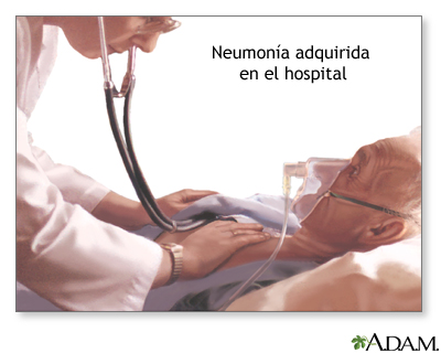 Neumonía adquirida en el hospital