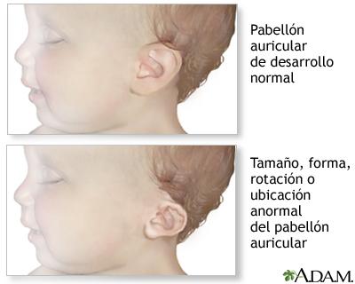Anomalías de la oreja