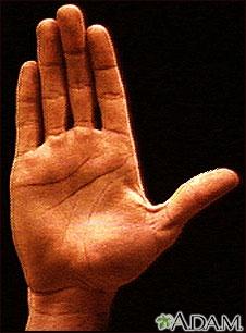 Anatomía de la superficie de la palma de la mano normal