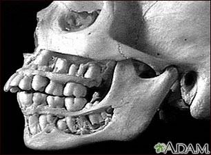 Dientes, adultos, en el cráneo