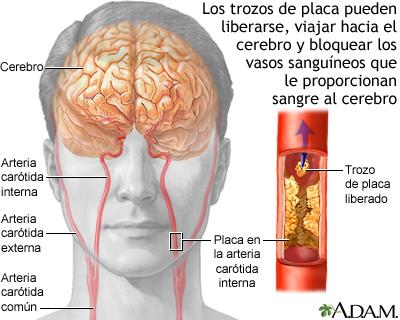 Aterosclerosis de la arteria carótida interna: MedlinePlus ...