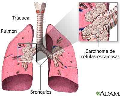 Carcinoma de células escamosas