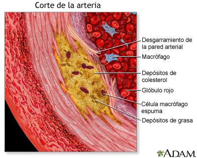 Vista agrandada de la aterosclerosis