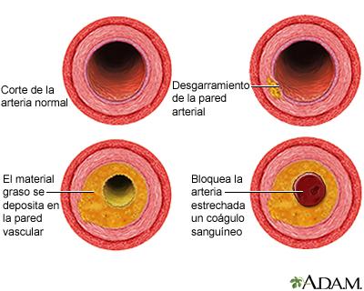Proceso de evolución de la aterosclerosis