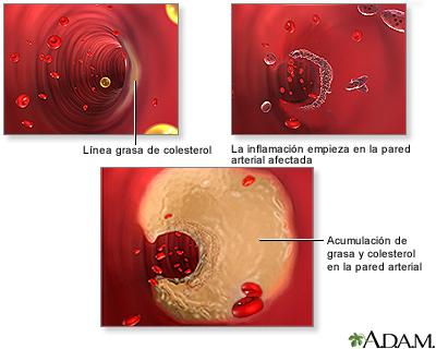 Acumulación de placa arterial
