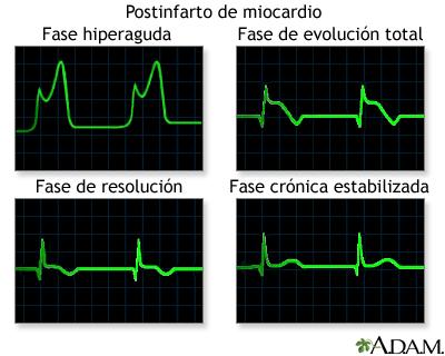 Gráficos de las ondas del ECG después del infarto al miocardio