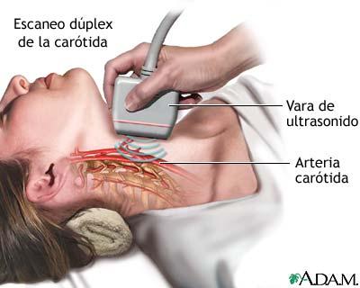 Dúplex de carótida