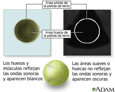 Comparación sobre el ultrasonido