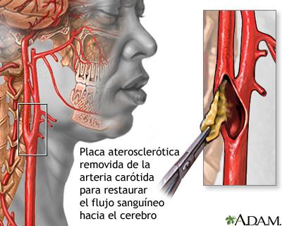 Resultado de imagen de endarterectomia