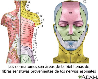 Dermatoma en el adulto
