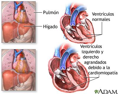 Cardiomiopatía alcohólica