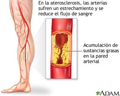 Arteriosclerosis de las extremidades