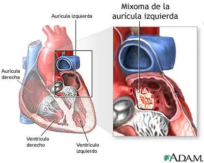 La ampliación varicosa sobre los ovarios
