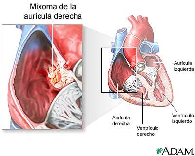 Mixoma auricular: MedlinePlus enciclopedia médica