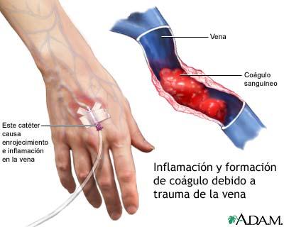Okklyuzionnyy la trombosis de la vena femoral