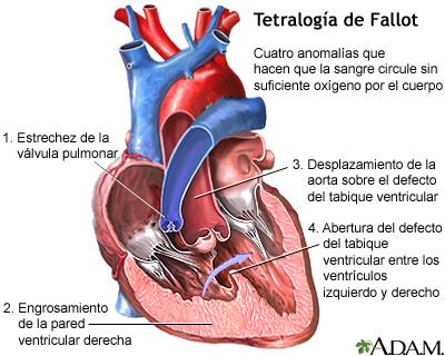Tetralogía de Fallot