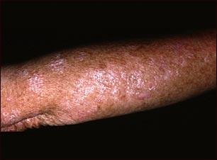 Queratosis actínica en el brazo