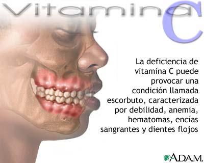 Déficit de vitamina C