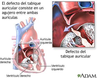Defecto del tabique auricular
