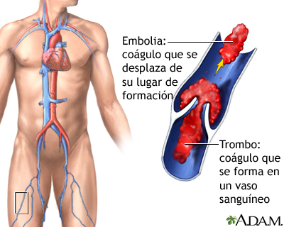 Trombo medlineplus enciclopedia m dica illustraci n for Define mural thrombus