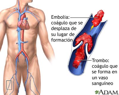 Trombo: MedlinePlus enciclopedia médica illustración