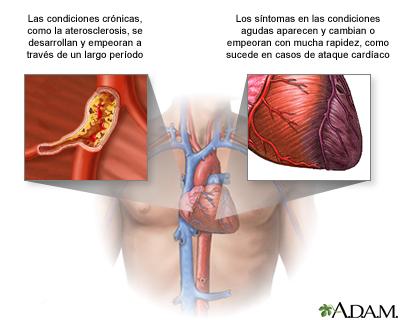 Condiciones agudas contra crónicas