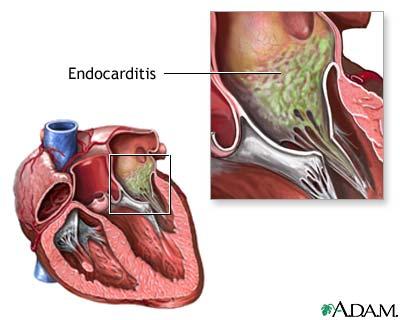 Endocarditis de cultivo negativo