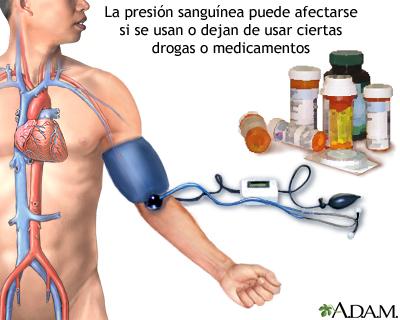 6 Formas inauditas de lograr un mayor Tratamiento hipertensión