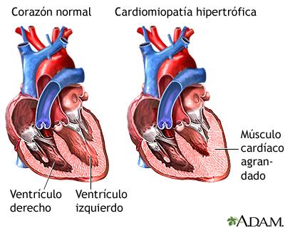 Cardiomiopatía hipertrófica