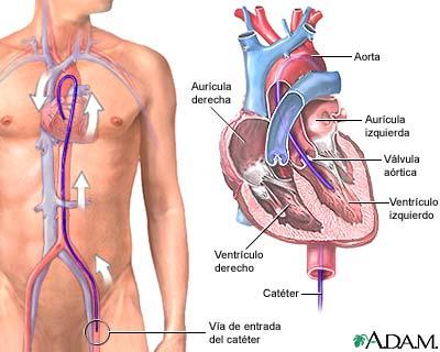 Cateterización del corazón izquierdo