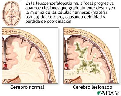 Leucoencefalopatía