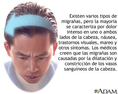 Cefalea migrañosa