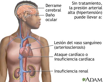 Hipertensión sin tratamiento