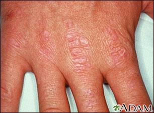 Dermatomiositis, pápulas de Gottron en las manos