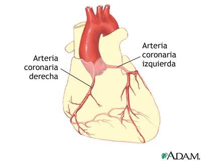 Angioplastia coronaria con balón - Serie—Anatomía normal ...
