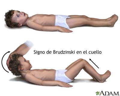 Signo de meningitis de Brudzinski