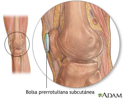 Bursa de la rodilla