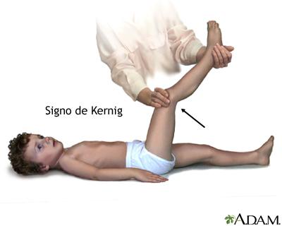 Signo de meningitis de Kernig