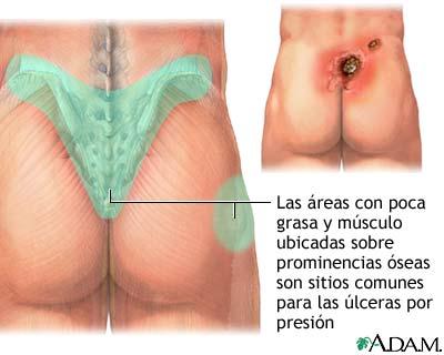 Áreas donde se presentan las úlceras de presión